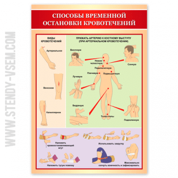 Способы временной остановки кровотечений